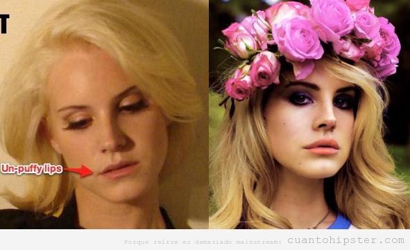 Lana del Rey, antes y después de las operaciones de cirugía estética